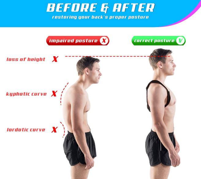 truweo posture corrector shown before and after